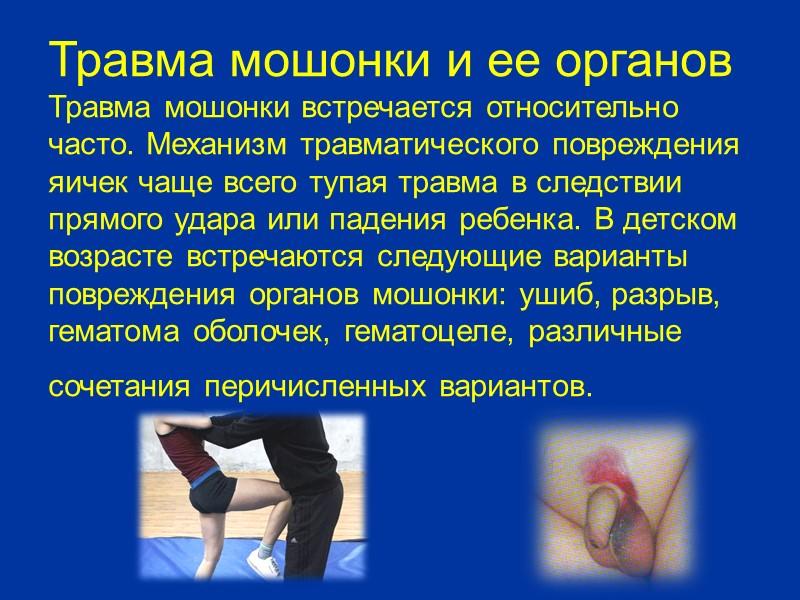 Острый орхоэпидидимит Заболевание начинается остро с нарушением общего состояния, повышением температуры тела, резкими болями